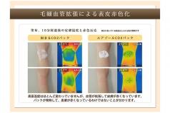CO2 皮膚温の赤色変化